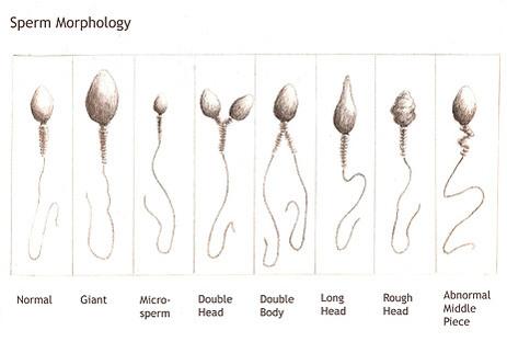 Sperm morph